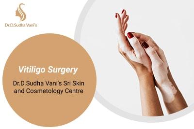 Dermato Surgery